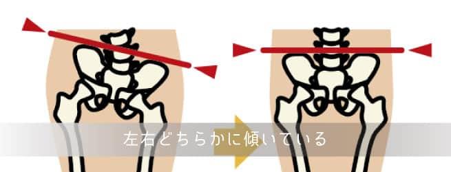 左右の傾き