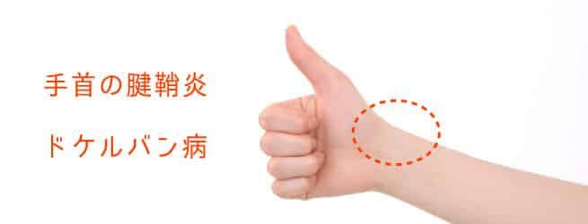 手首の腱鞘炎